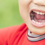 5 Benefits of Kids Dental Crowns